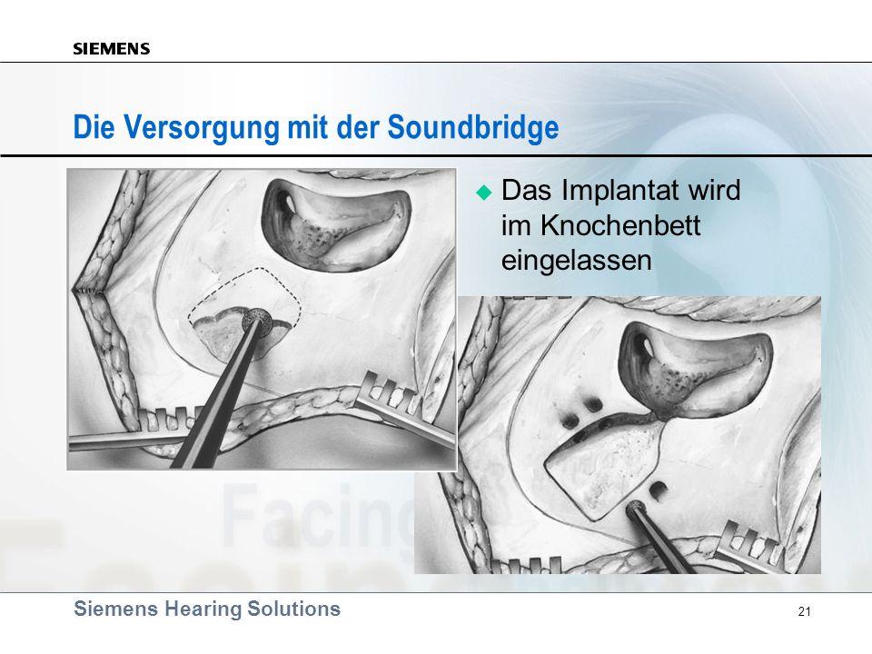 Die Versorgung mit der Soundbridge