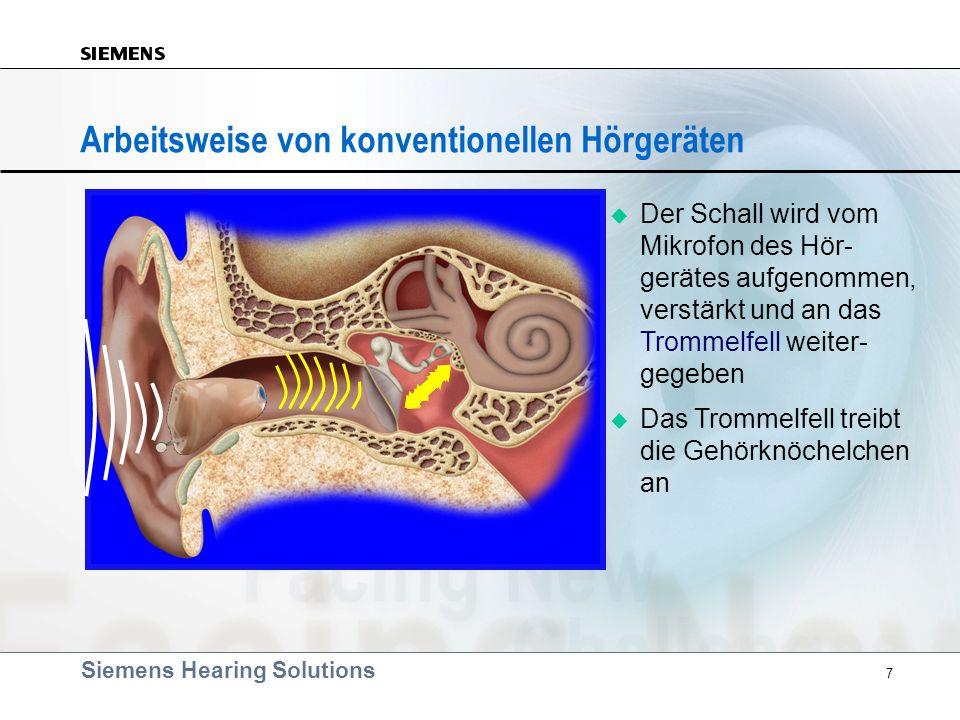 Arbeitsweise von konventionellen Hörgeräten