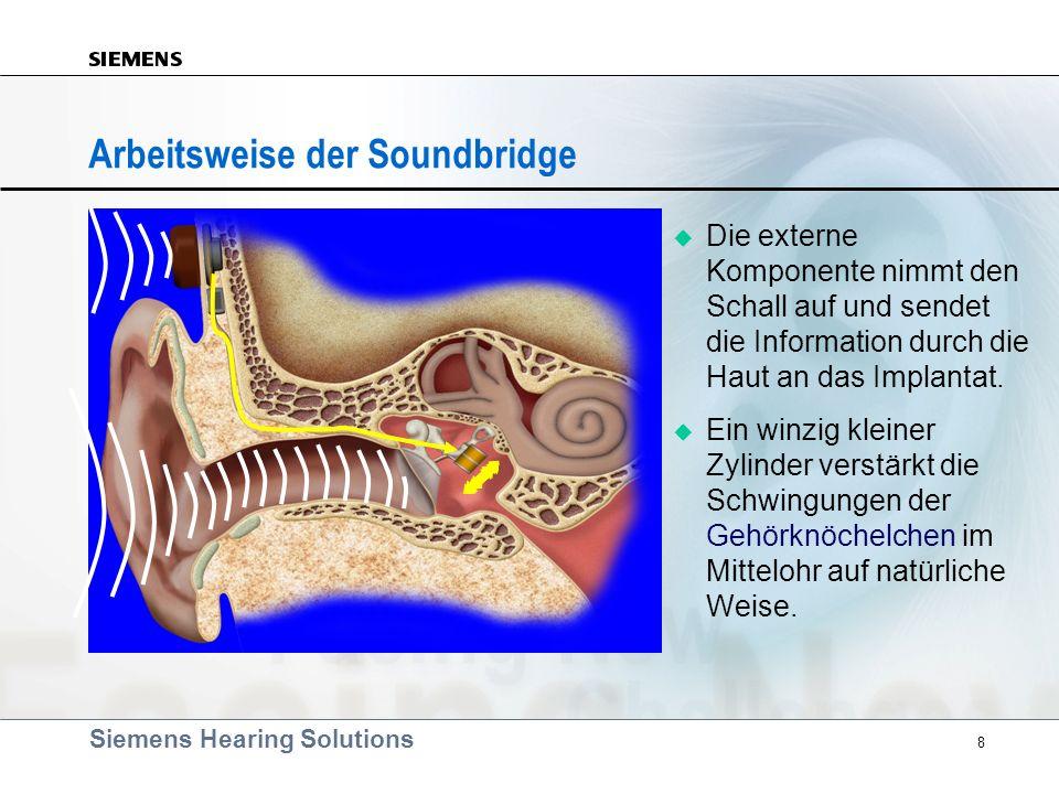 Arbeitsweise der Soundbridge