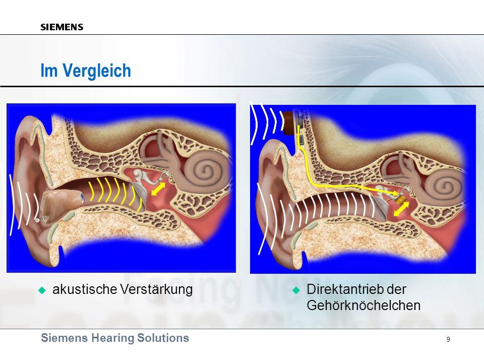 Im Vergleich akustische Verstärkung Direktantrieb der Gehörknöchelchen