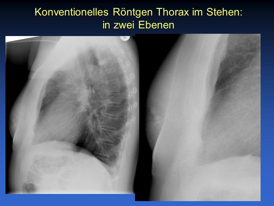 Konventionelles Röntgen Thorax im Stehen: