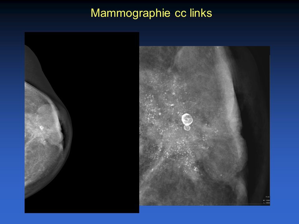 Mammographie cc links