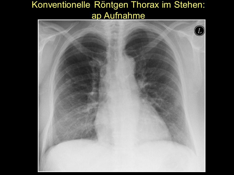 Konventionelle Röntgen Thorax im Stehen: