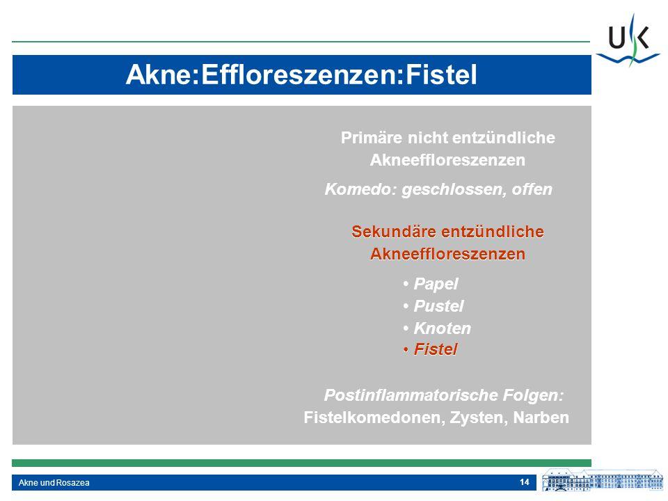 Akne:Effloreszenzen:Fistel