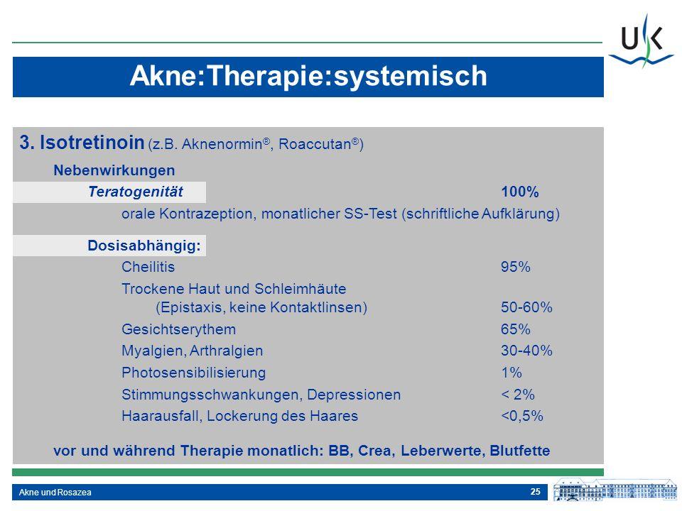 Akne:Therapie:systemisch