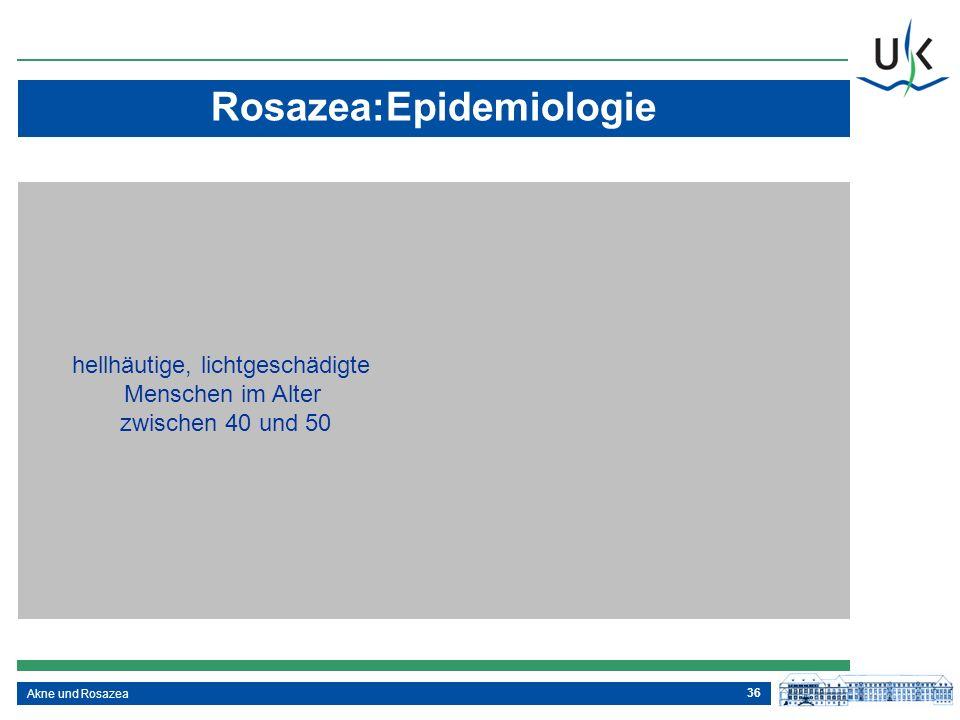 Rosazea:Epidemiologie