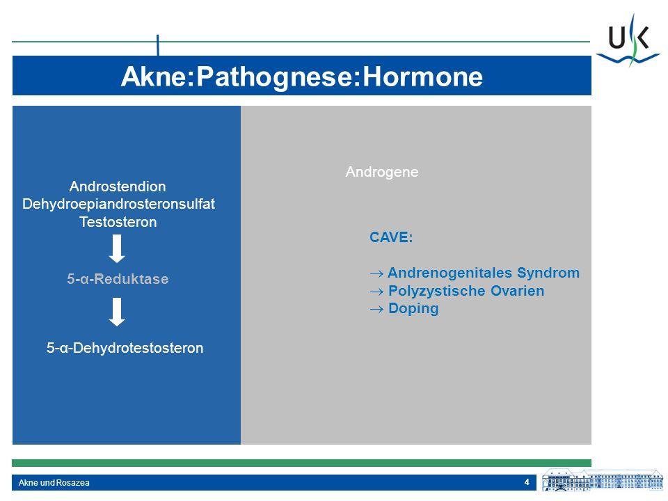 Akne:Pathognese:Hormone