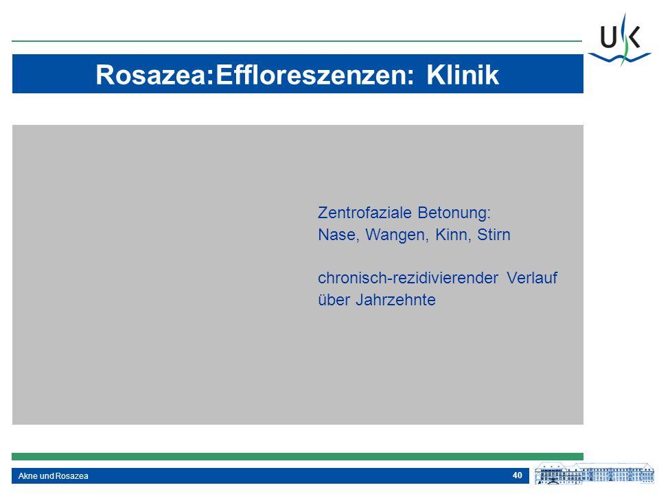 Rosazea:Effloreszenzen: Klinik