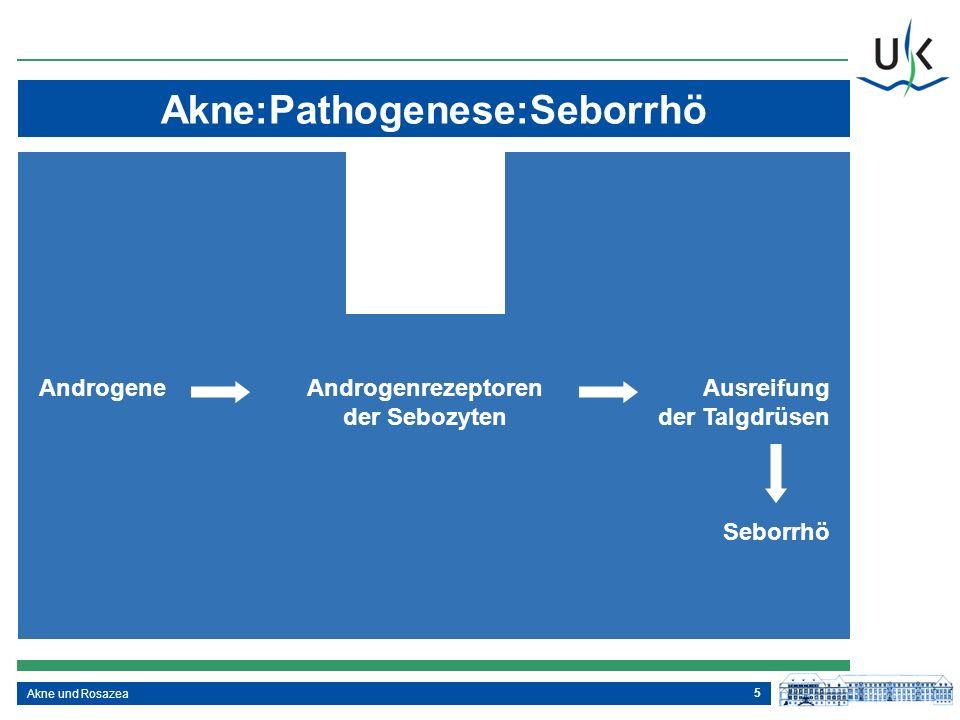 Akne:Pathogenese:Seborrhö