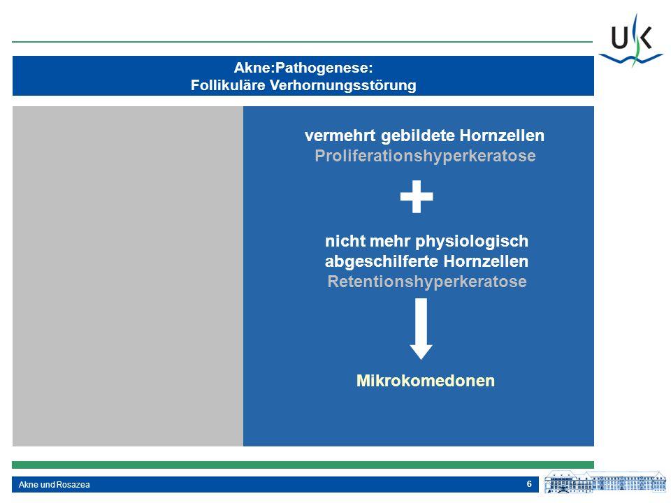 + vermehrt gebildete Hornzellen Proliferationshyperkeratose