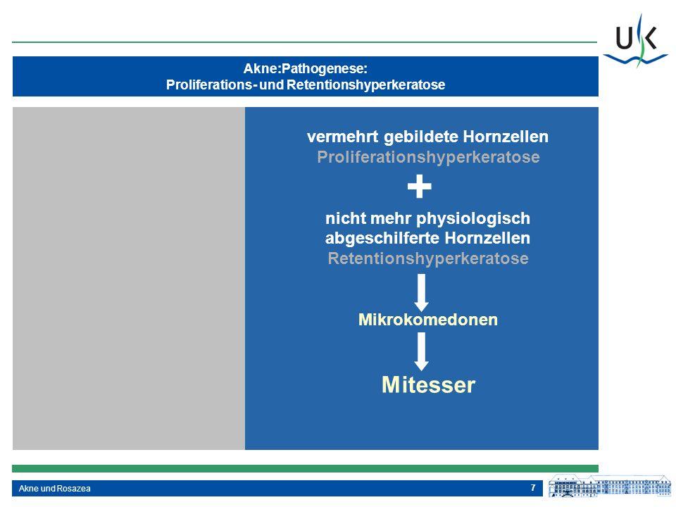 + Mitesser vermehrt gebildete Hornzellen Proliferationshyperkeratose