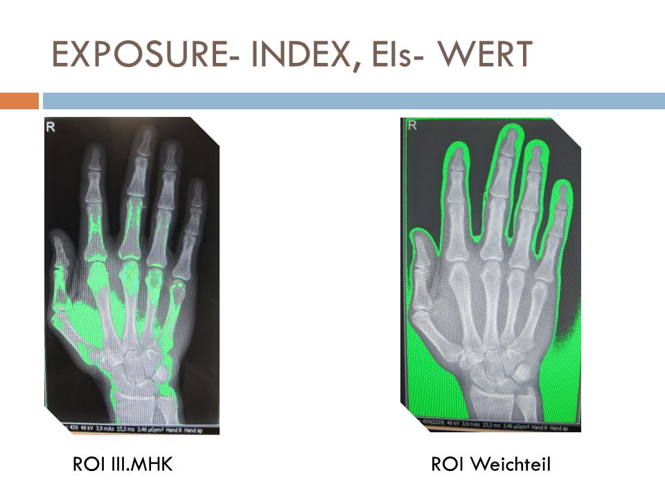 EXPOSURE- INDEX, EIs- WERT