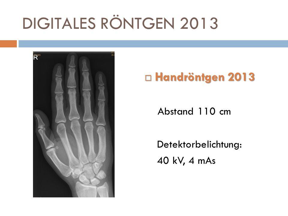 DIGITALES RÖNTGEN 2013 Handröntgen 2013 Abstand 110 cm