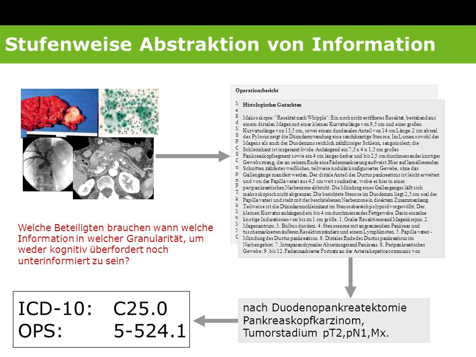 Stufenweise Abstraktion von Information