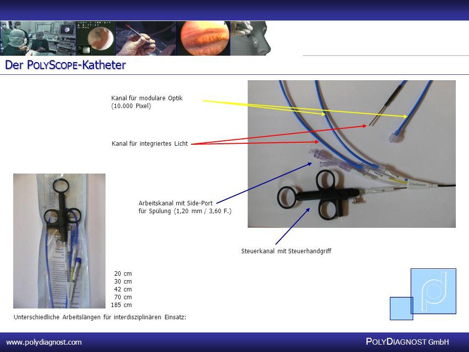 Der PolyScope-Katheter