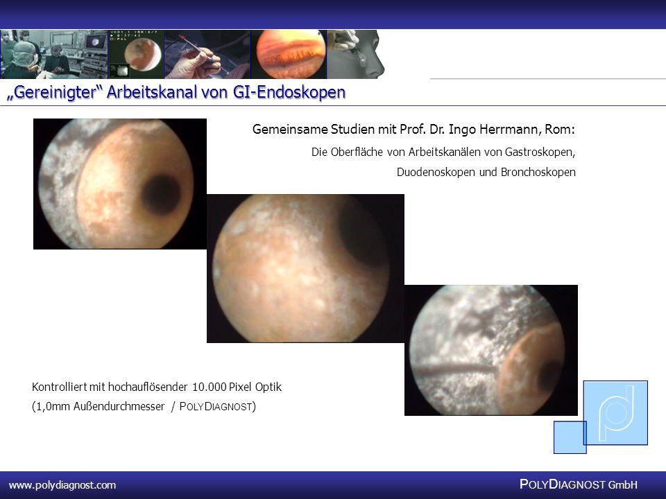 """""""Gereinigter Arbeitskanal von GI-Endoskopen"""