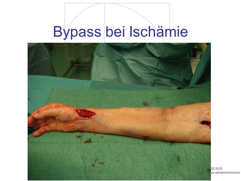 Bypass bei Ischämie