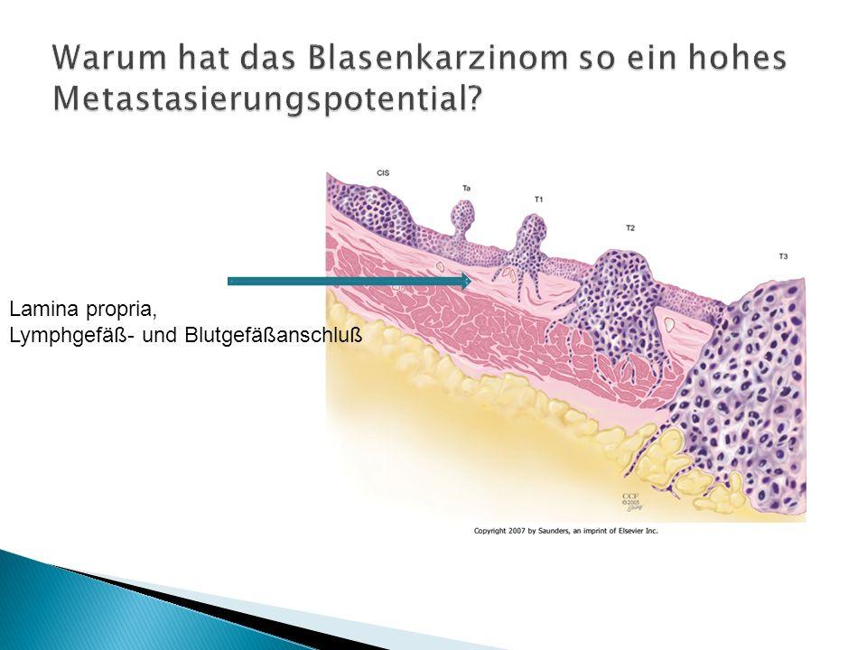 Warum hat das Blasenkarzinom so ein hohes Metastasierungspotential