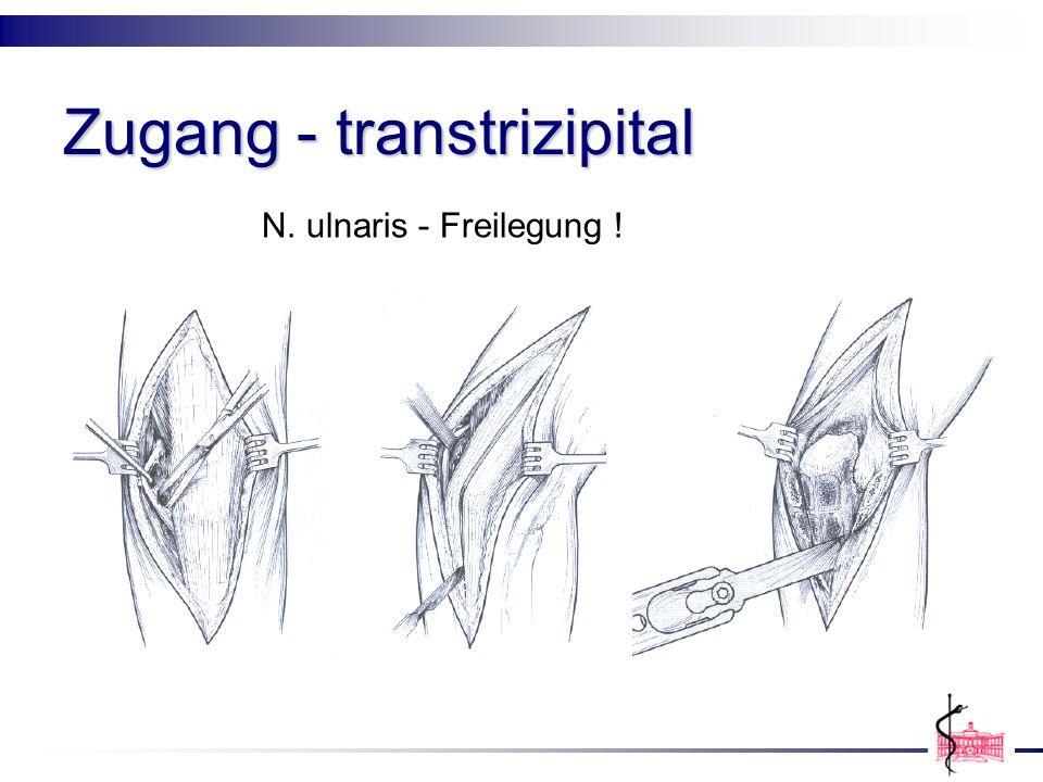 Zugang - transtrizipital