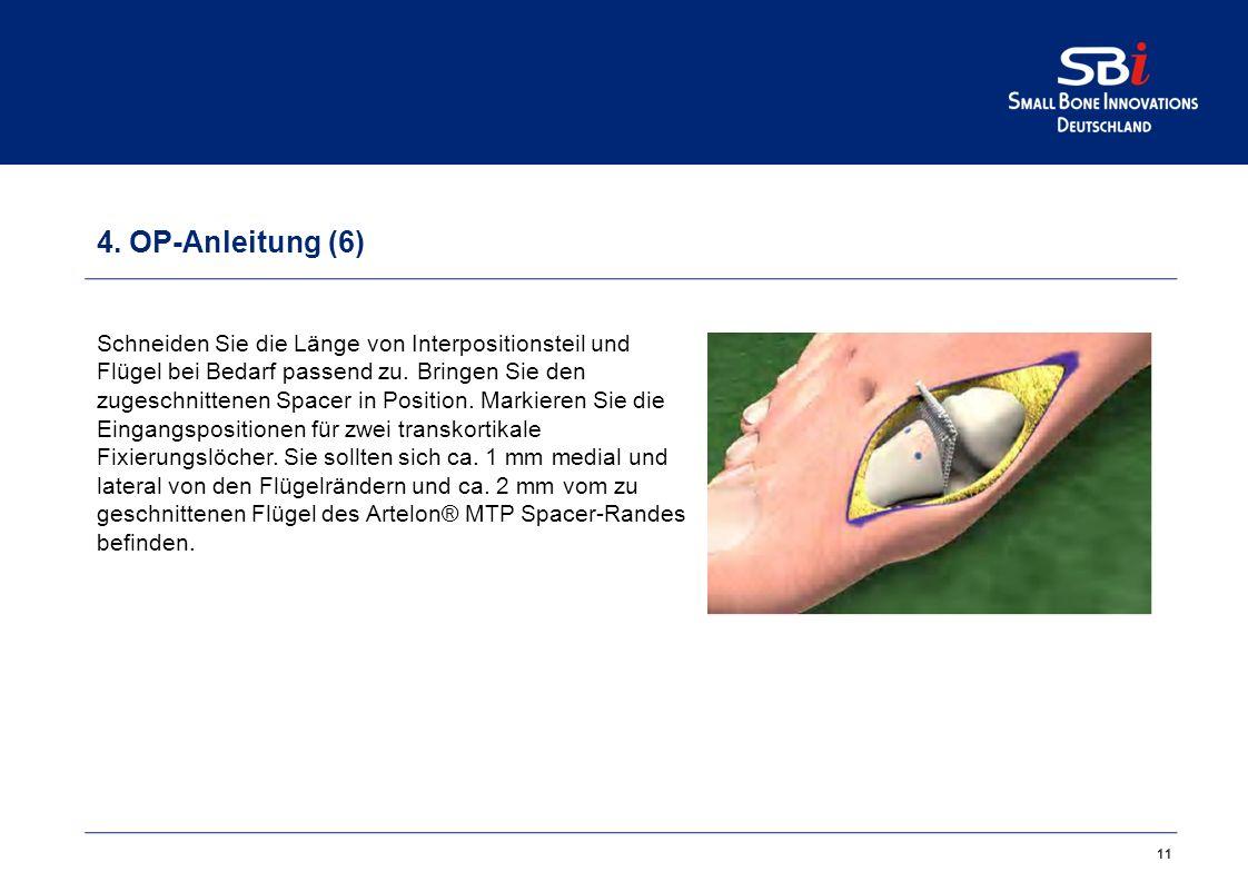 4. OP-Anleitung (5)