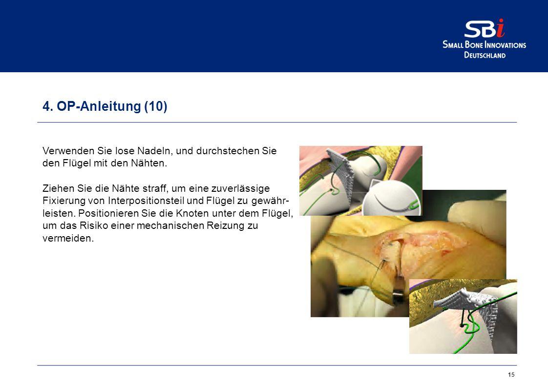 Nett Leisten Knoten Galerie - Anatomie Und Physiologie Knochen ...