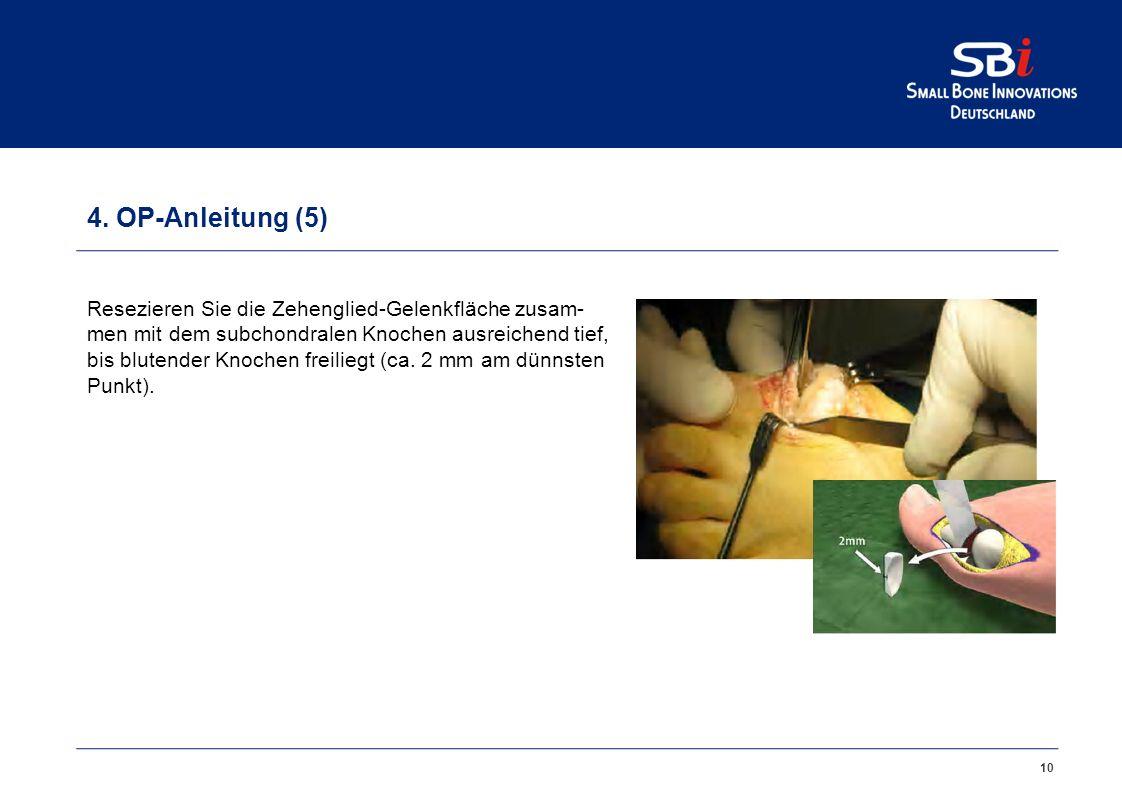 4. OP-Anleitung (4)