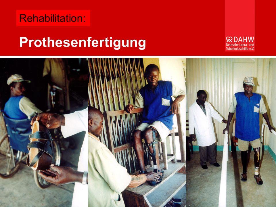 Rehabilitation: Prothesenfertigung