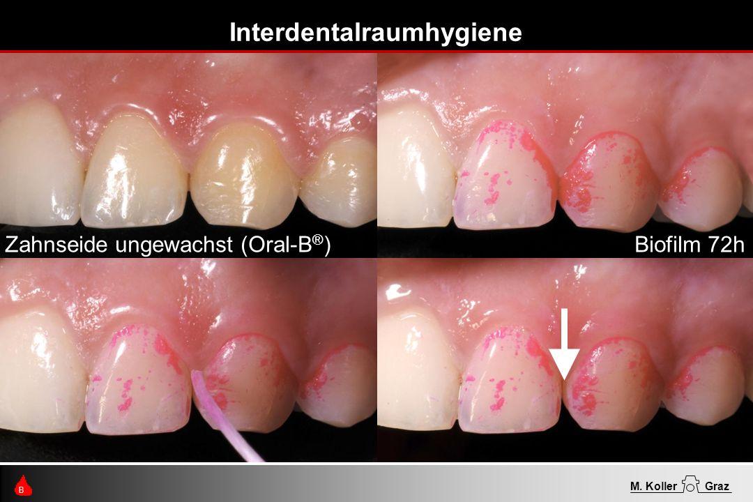 Interdentalraumhygiene