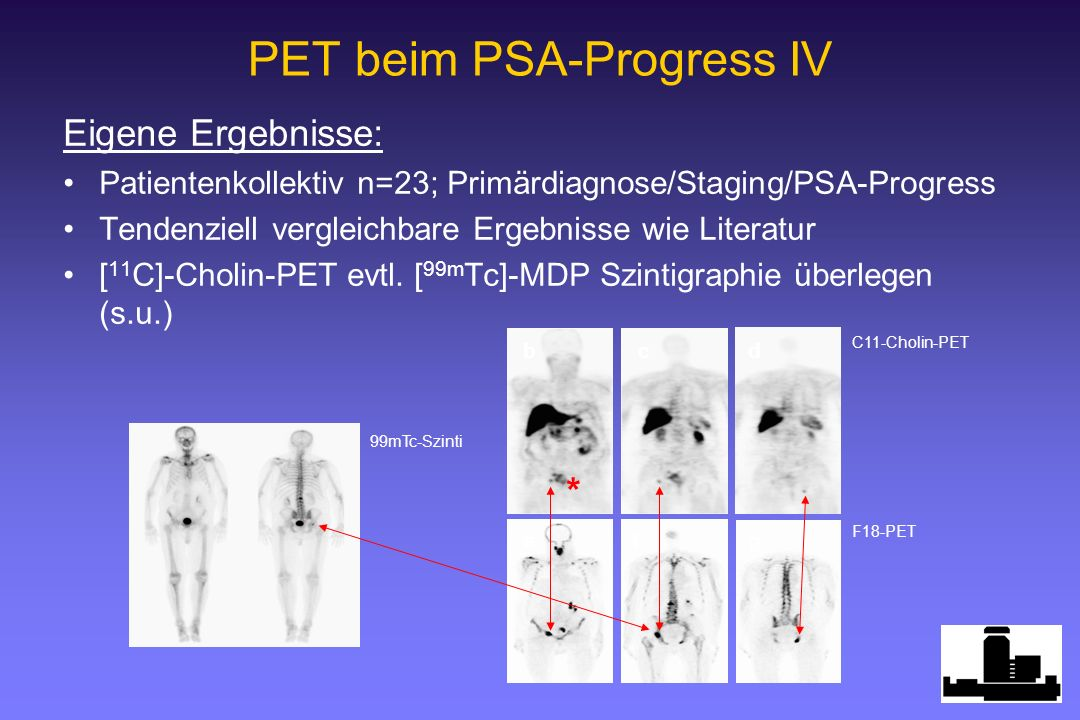 PET beim PSA-Progress IV