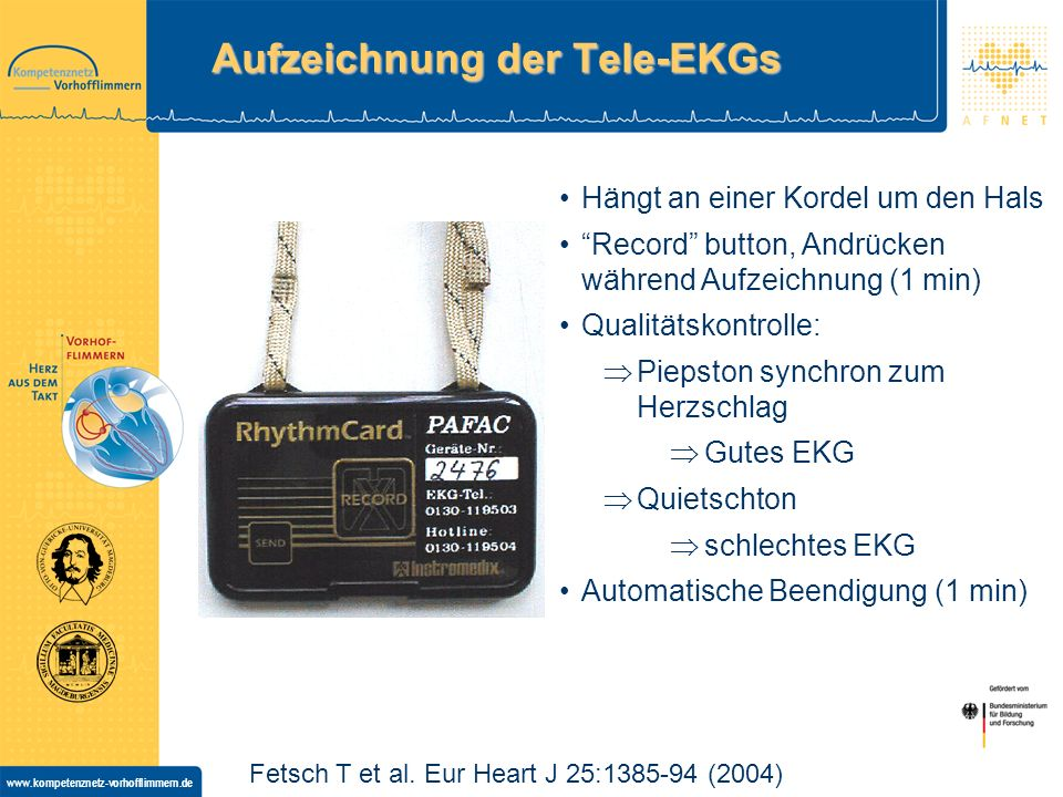 Aufzeichnung der Tele-EKGs