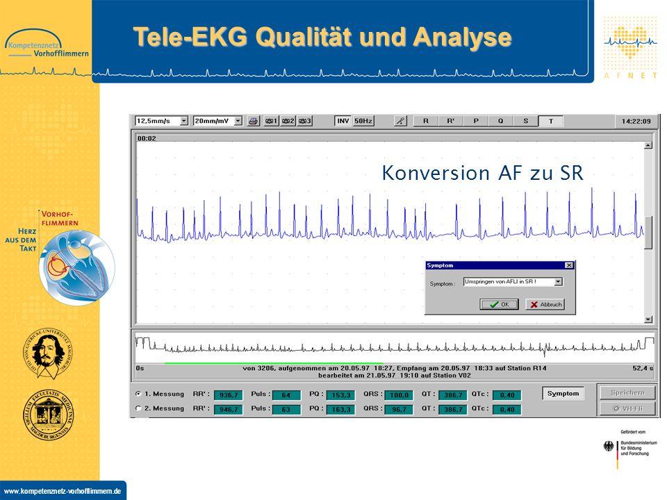 Tele-EKG Qualität und Analyse