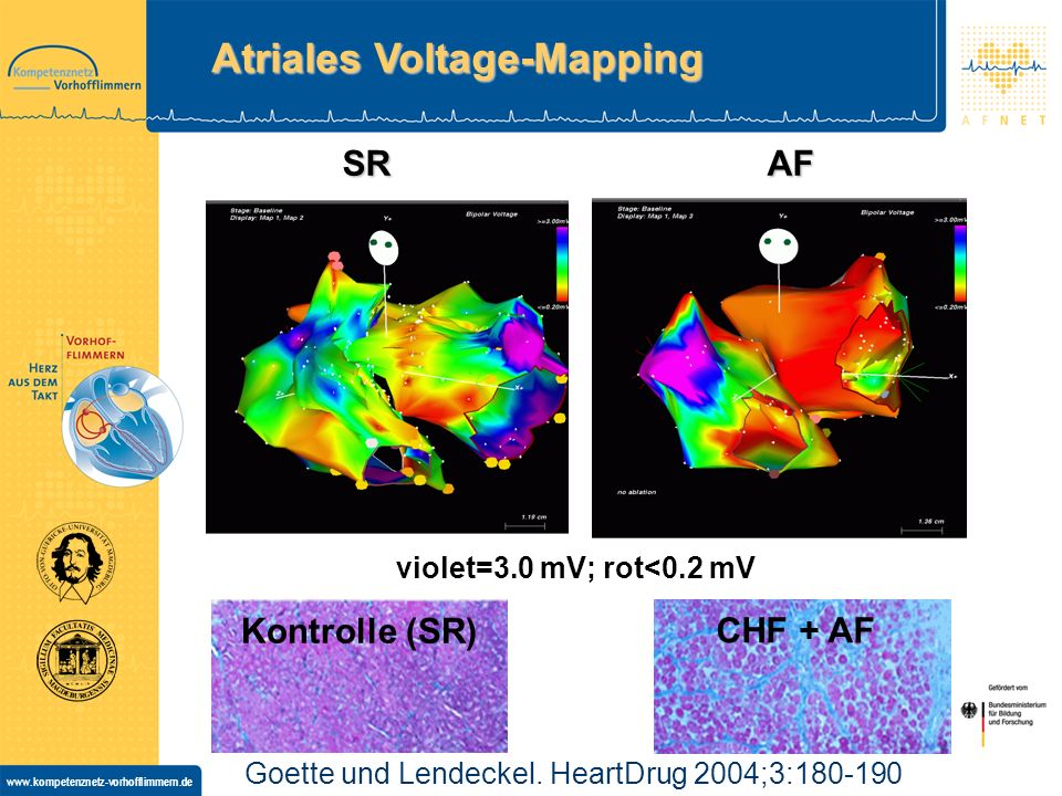 Atriales Voltage-Mapping