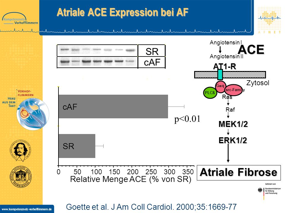 Atriale ACE Expression bei AF