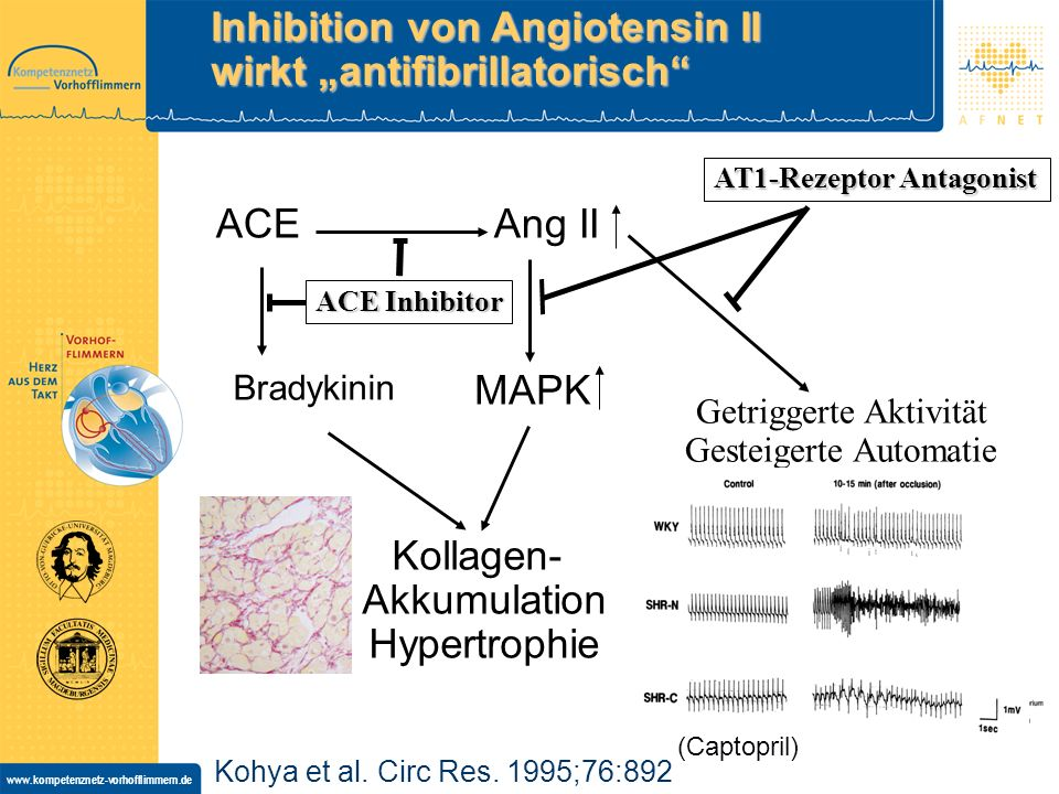 "Inhibition von Angiotensin II wirkt ""antifibrillatorisch"