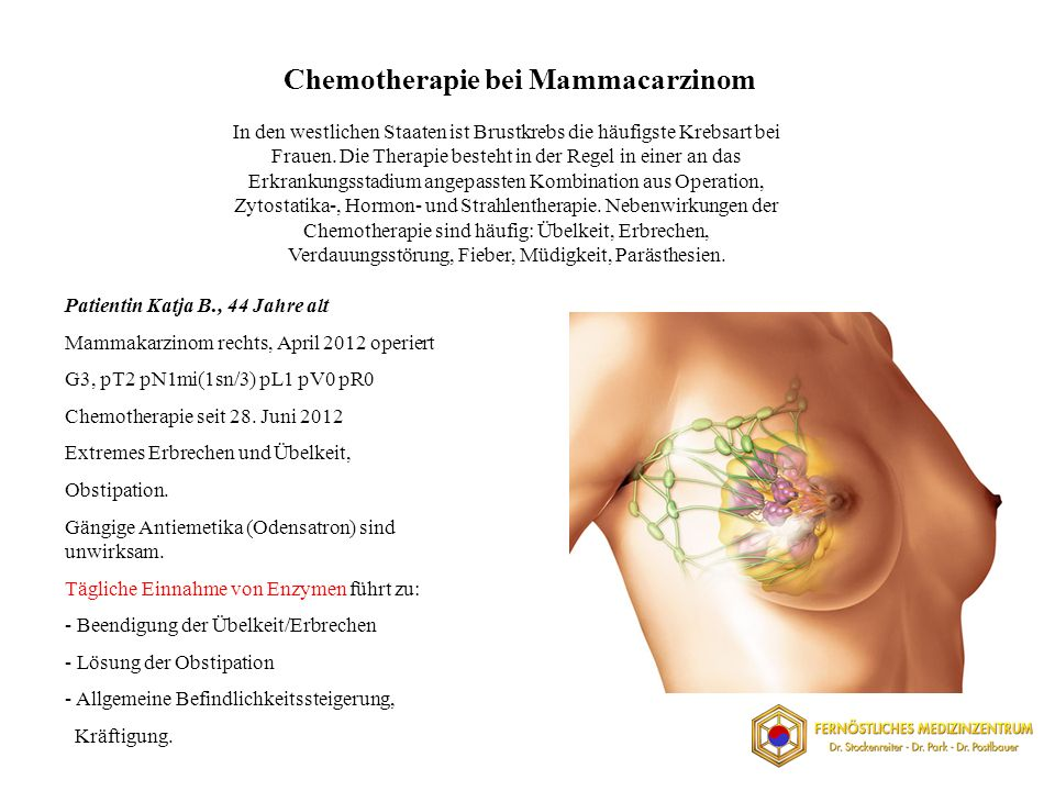 Chemotherapie bei Mammacarzinom