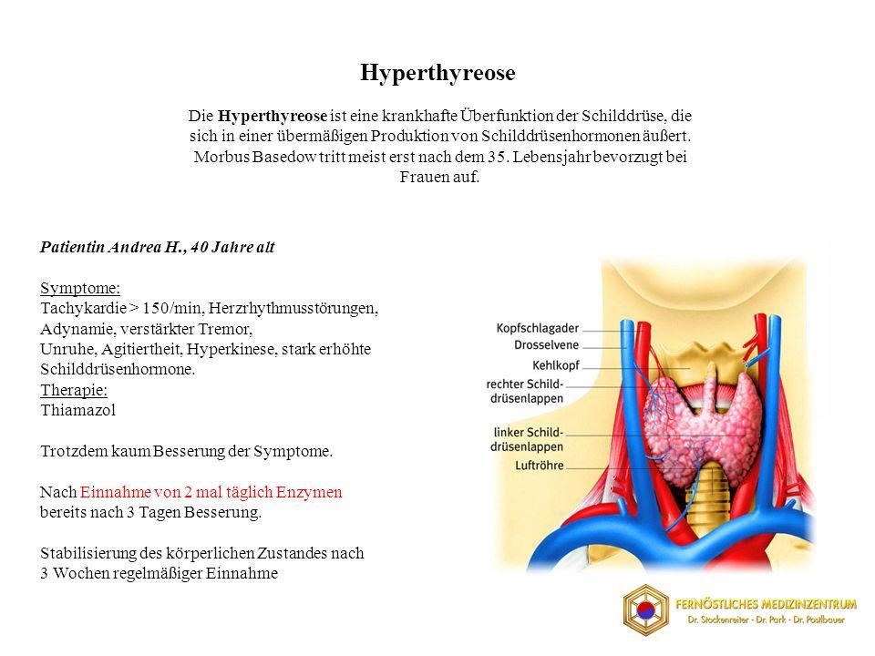 Hyperthyreose
