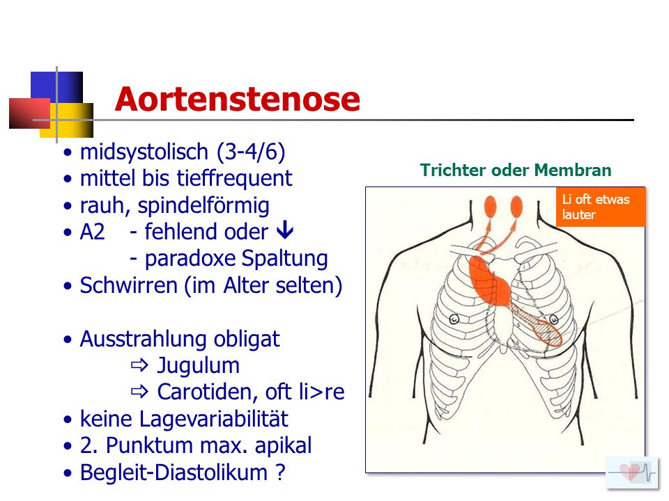 Aortenstenose midsystolisch (3-4/6) mittel bis tieffrequent