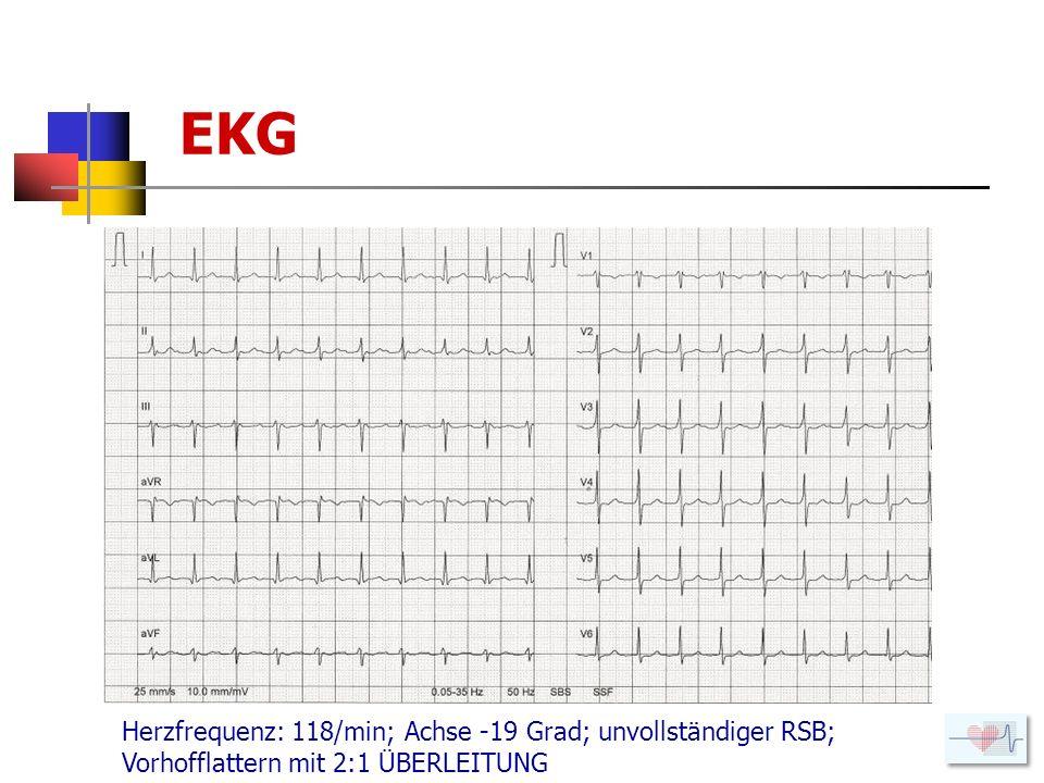 EKG Herzfrequenz: 118/min; Achse -19 Grad; unvollständiger RSB; Vorhofflattern mit 2:1 ÜBERLEITUNG