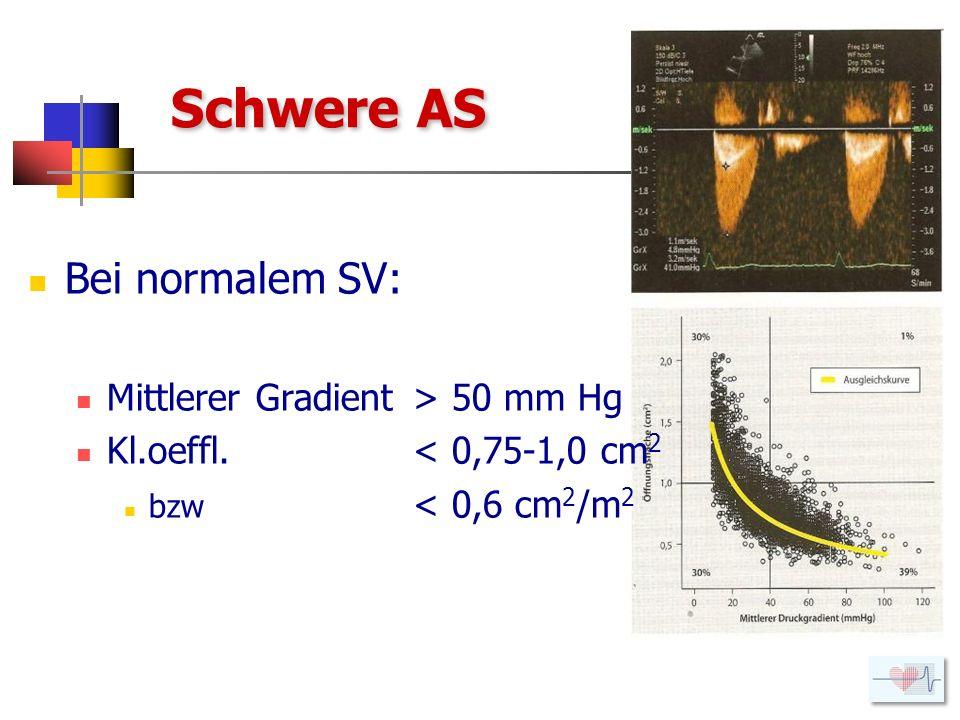 Schwere AS Bei normalem SV: Mittlerer Gradient > 50 mm Hg