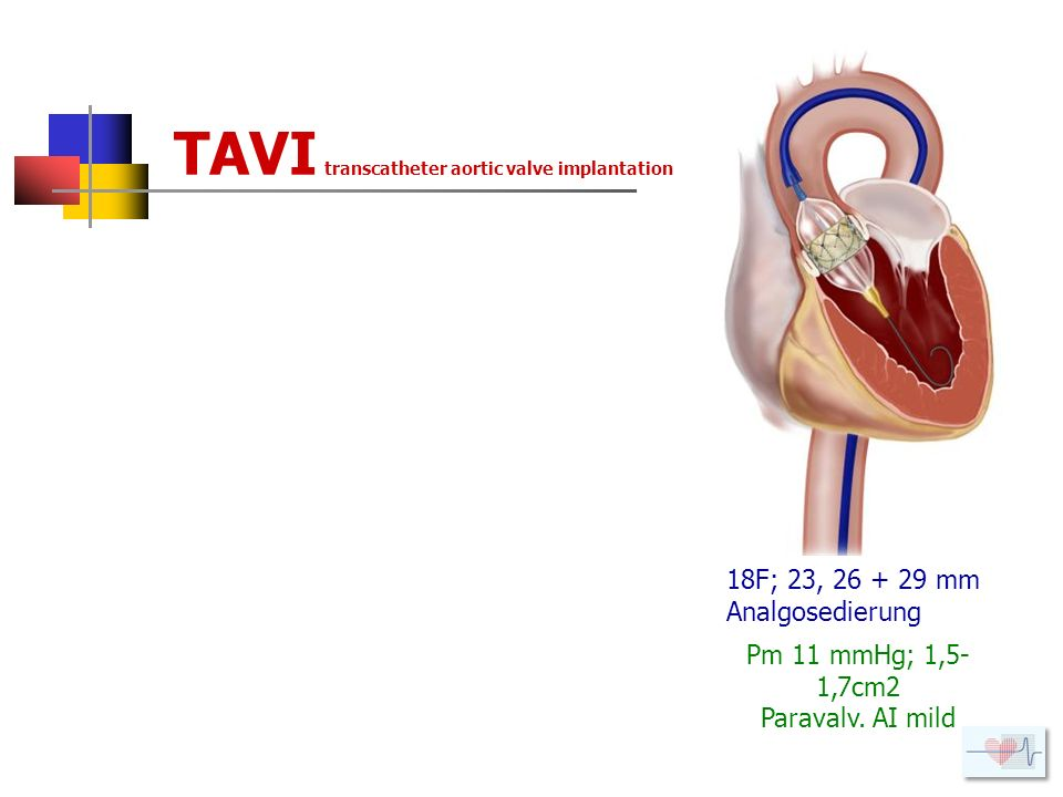 TAVI transcatheter aortic valve implantation