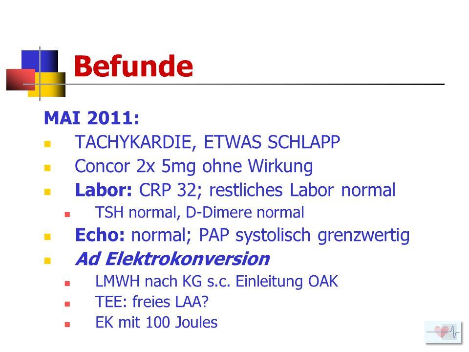 Befunde MAI 2011: TACHYKARDIE, ETWAS SCHLAPP