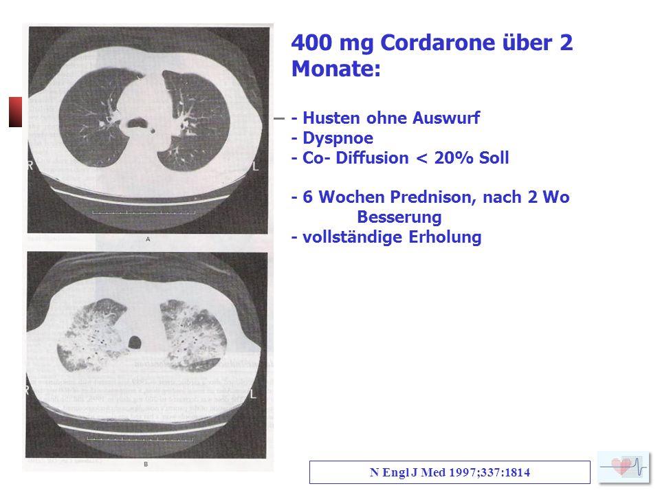 400 mg Cordarone über 2 Monate: - Husten ohne Auswurf - Dyspnoe - Co- Diffusion < 20% Soll - 6 Wochen Prednison, nach 2 Wo Besserung - vollständige Erholung