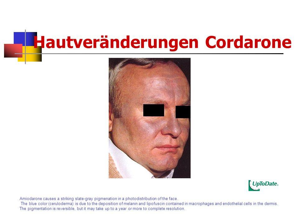 Hautveränderungen Cordarone
