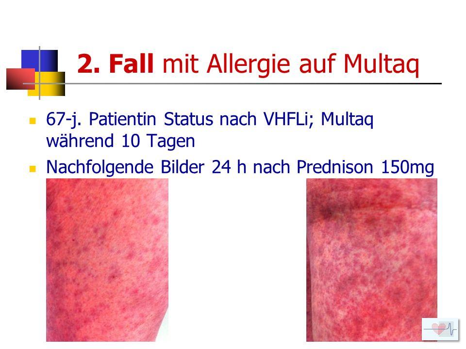 2. Fall mit Allergie auf Multaq