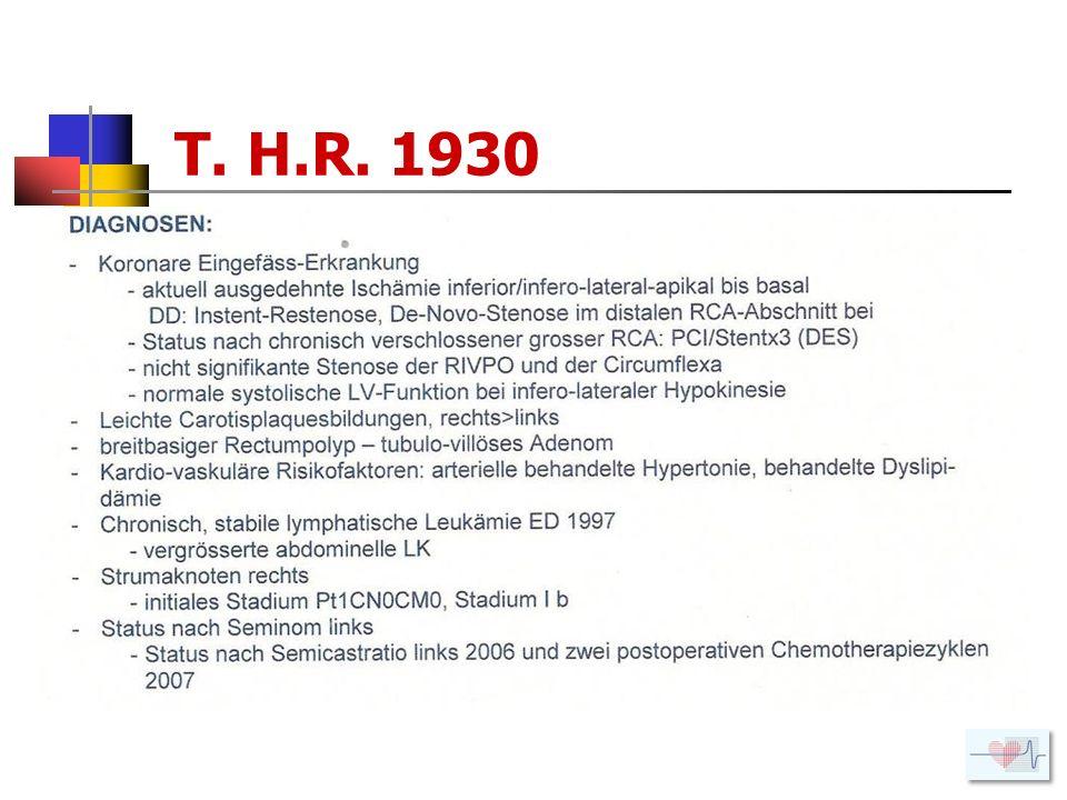 T. H.R. 1930