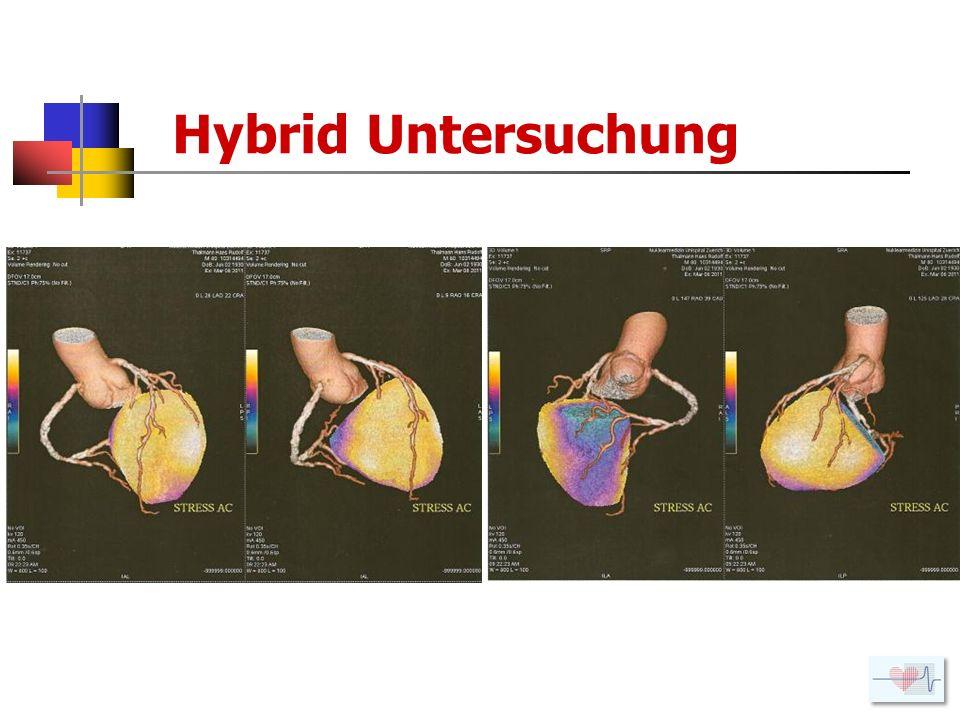 Hybrid Untersuchung