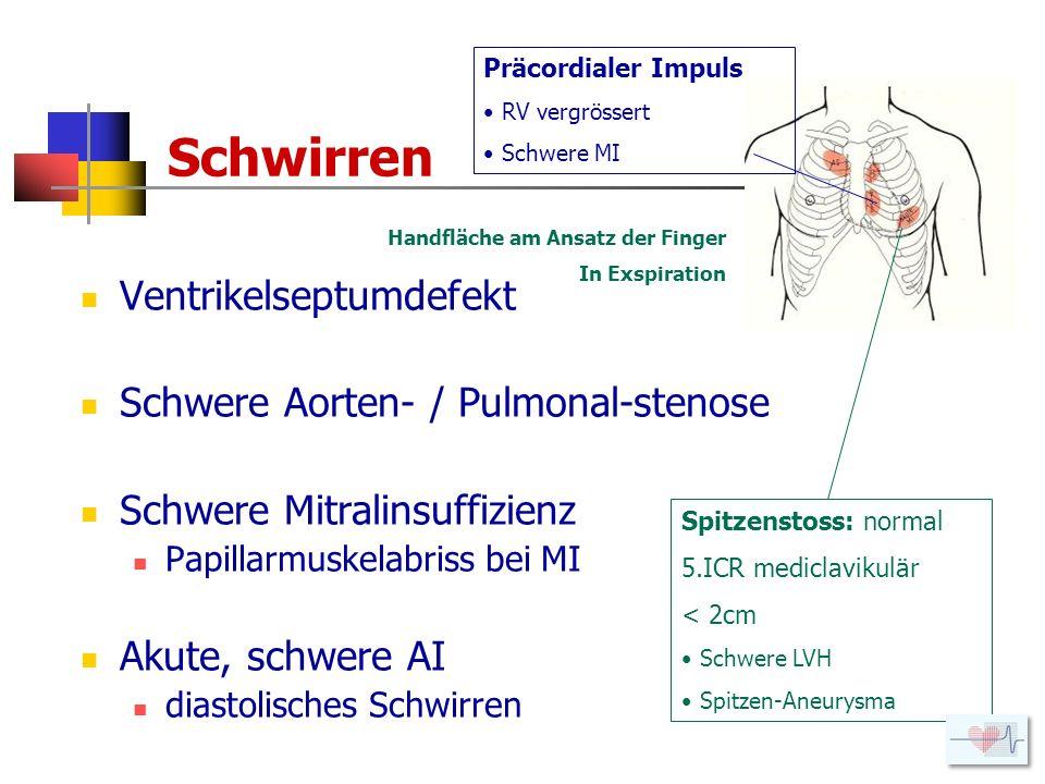 Schwirren Ventrikelseptumdefekt Schwere Aorten- / Pulmonal-stenose