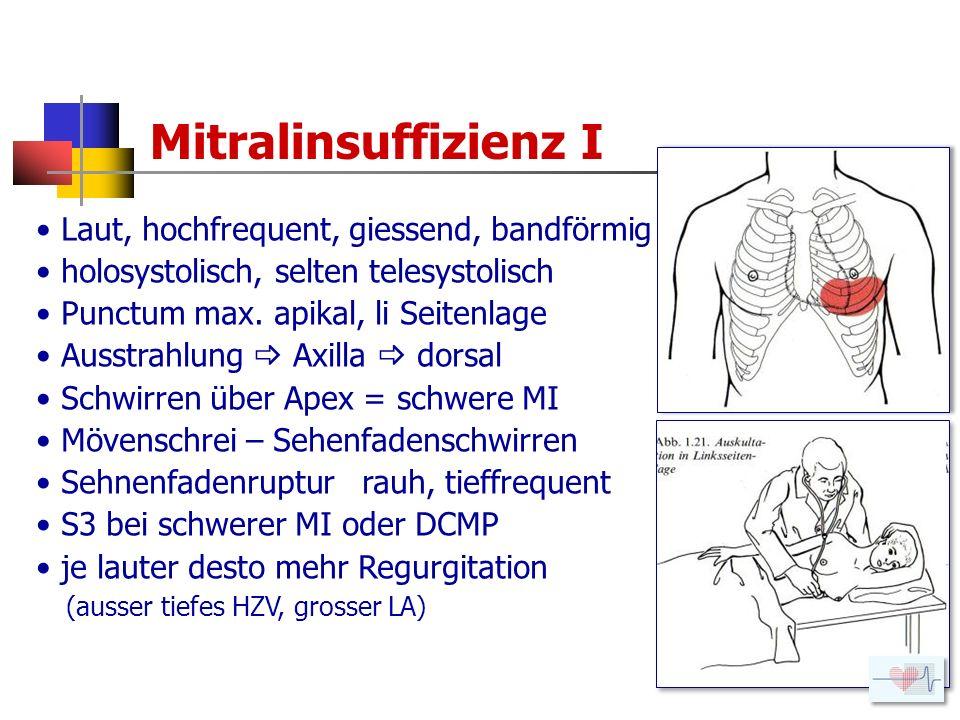 Mitralinsuffizienz I Laut, hochfrequent, giessend, bandförmig