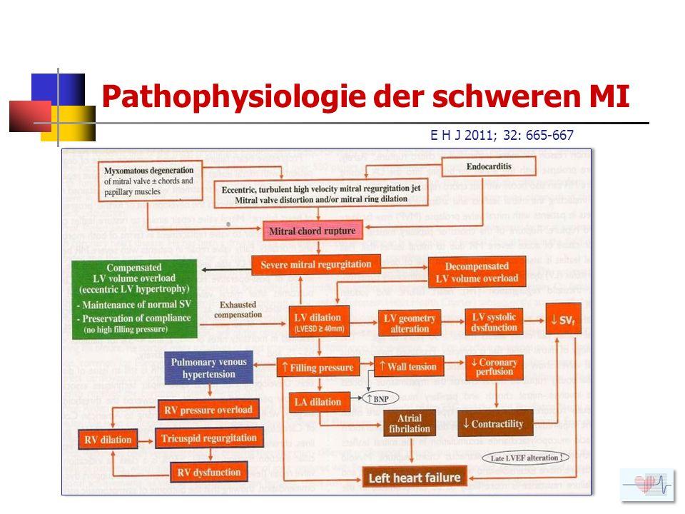 Pathophysiologie der schweren MI