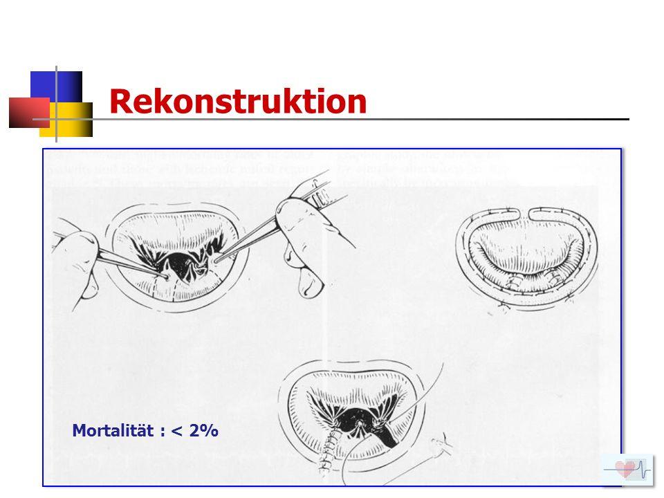 Rekonstruktion Mortalität : < 2%